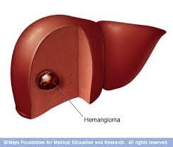 d7_liver_hemangioma